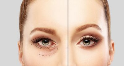 5 Ways a Blepharoplasty Can Make You Look Good