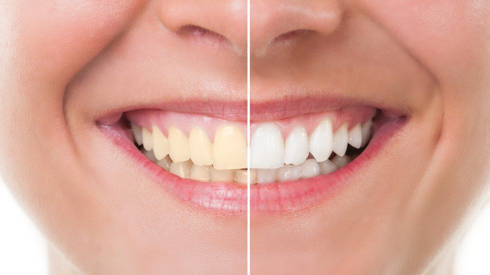 6 Dos and Don'ts of Teeth-Whitening